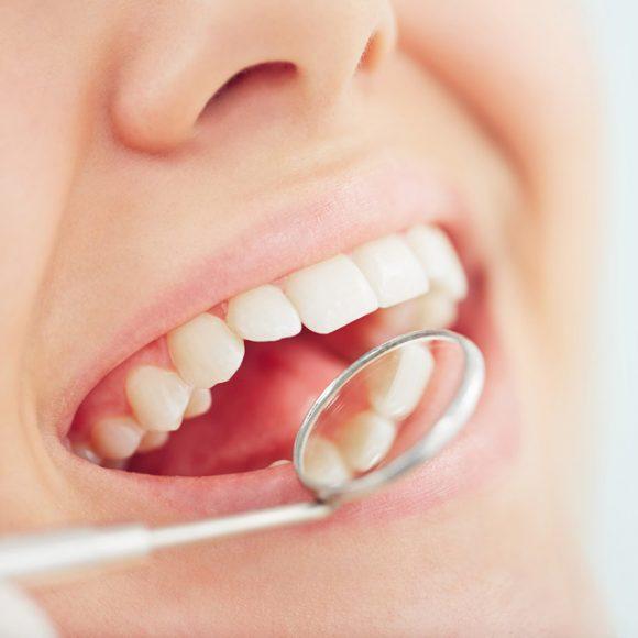 Aligning the Teeth